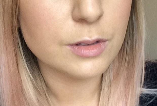 Os lábios de Chloe antes do preenchimento (Foto: Reprodução/Marie Claire EUA)
