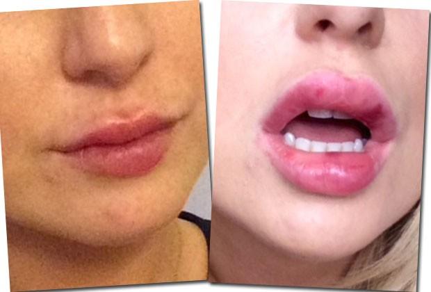 À esquerda: os lábios de Chloe duas horas após o preenchimento. À direira: um dia depois, com alguns hematomas (Foto: Reprodução/Marie Claire EUA)