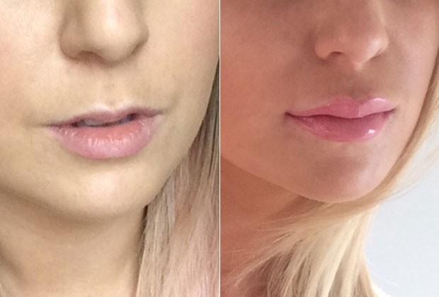 Os lábios de Chloe antes e depois (Foto: Reprodução/Marie Claire EUA)